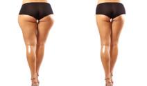 La Ultra-Lipo una nueva forma de liposucción